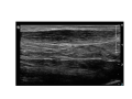 Achilles tendinopathy with neovasc grade 3 edit